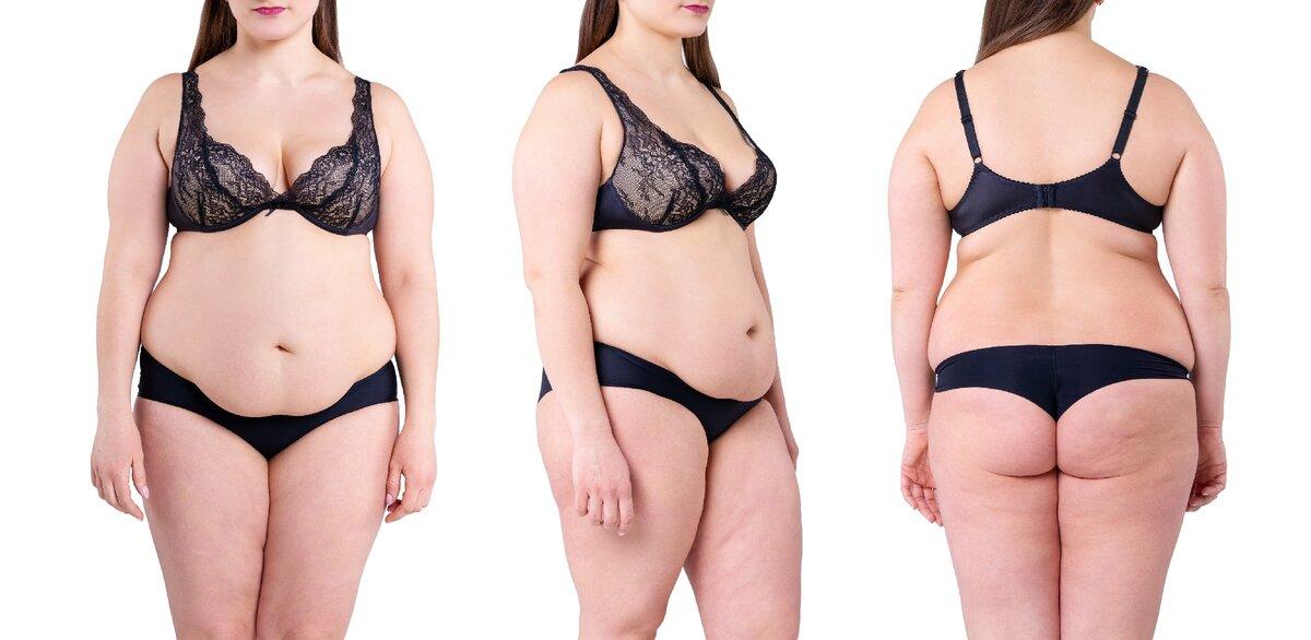 Абдоминальное ожирение у женщин лечение