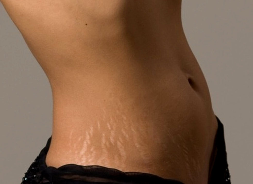 как избавиться от растяжек на теле