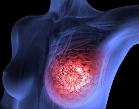 рак молочной железы лечение