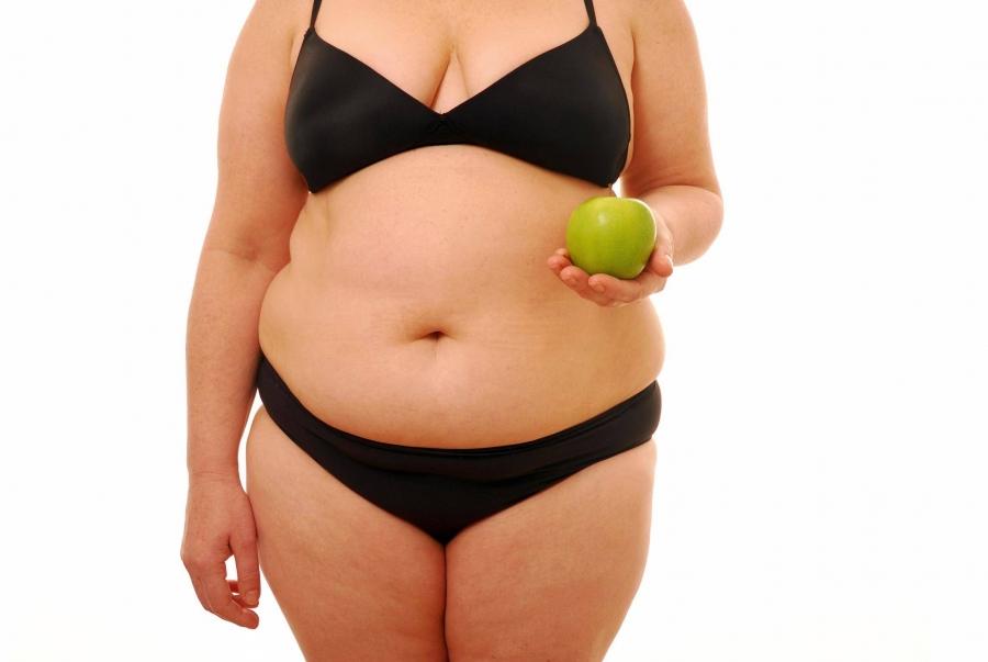 Женщина с адбоминальным ожирением